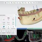 کرک نرم افزار ۳shape implant studio